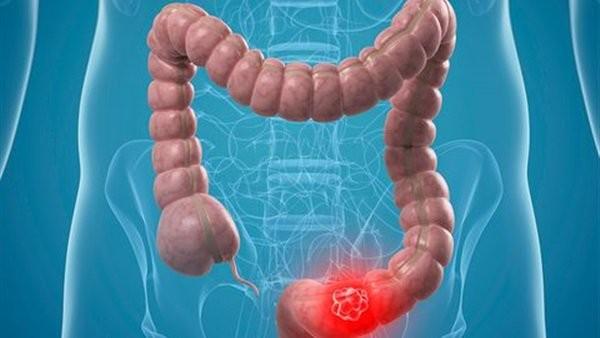 احترس ..هذا الطعام يزيد خطر الإصابة بسرطان الأمعاء