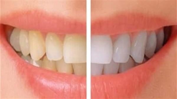 بسرعة غير متوقعة.. نوع من الفواكه يساعد على تبييض الأسنان