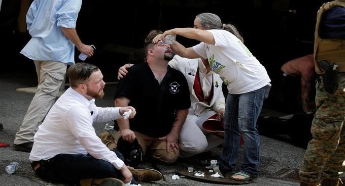بالصور.. إصابات إثر حادث دهس في ولاية فيرجينيا الأمريكية