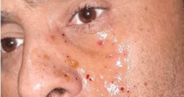 """شاهد..محمود عبد المغنى يتعرض لإصابة فى وجهه أثناء تصوير """"حملة فرعون"""""""