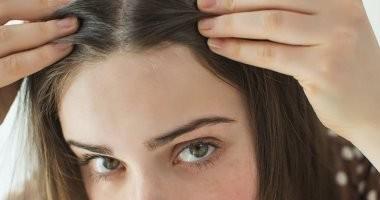 ابعدى عن الصبغة وأضرارها.. وصفات طبيعية للتخلص من الشعر الأبيض